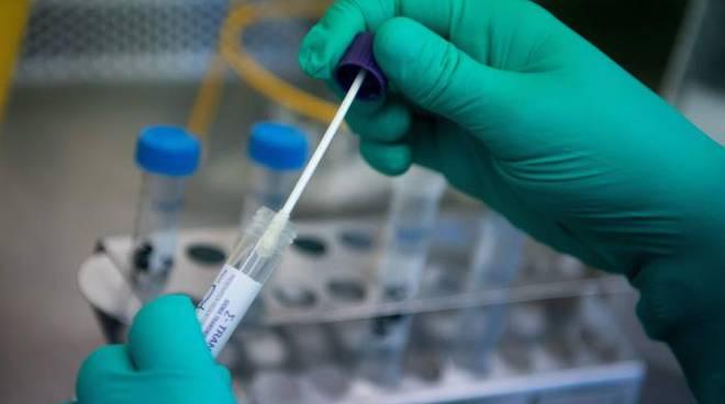 Test Positivi Coronavirus