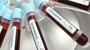 Coronavirus Positività Test