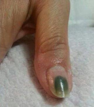 Che sia migliore da un fungo su unghie di mani